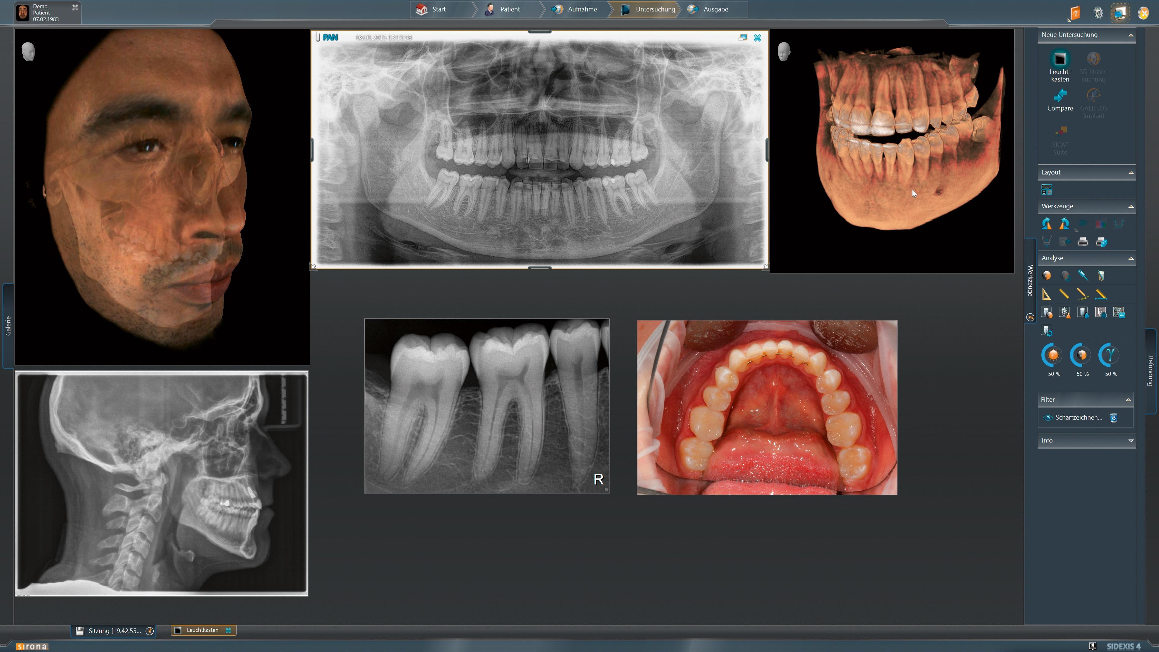 DVT XG3D Beispielbilder 2